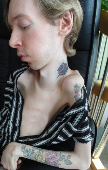 Ein behinderter Mann sitzt in einem Sessel. Sein Oberkörper ist zur Hälfte entblößt und gibt den Blick auf seine Tattoos frei. Sein Blick ist unterwürfig auf den Boden gerichtet.